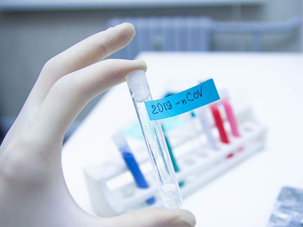 coronavirus diagnostic test